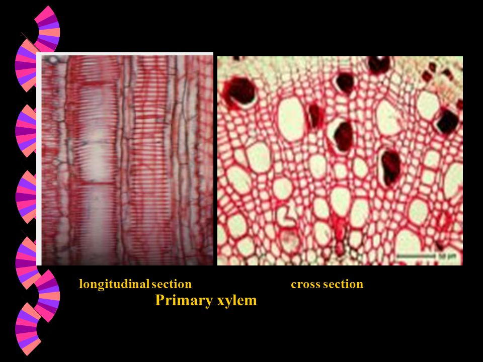 longitudinal sectioncross section Primary xylem
