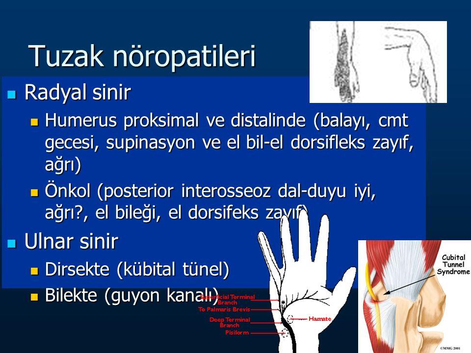 Tuzak nöropatileri Radyal sinir Radyal sinir Humerus proksimal ve distalinde (balayı, cmt gecesi, supinasyon ve el bil-el dorsifleks zayıf, ağrı) Humerus proksimal ve distalinde (balayı, cmt gecesi, supinasyon ve el bil-el dorsifleks zayıf, ağrı) Önkol (posterior interosseoz dal-duyu iyi, ağrı?, el bileği, el dorsifeks zayıf) Önkol (posterior interosseoz dal-duyu iyi, ağrı?, el bileği, el dorsifeks zayıf) Ulnar sinir Ulnar sinir Dirsekte (kübital tünel) Dirsekte (kübital tünel) Bilekte (guyon kanalı) Bilekte (guyon kanalı)