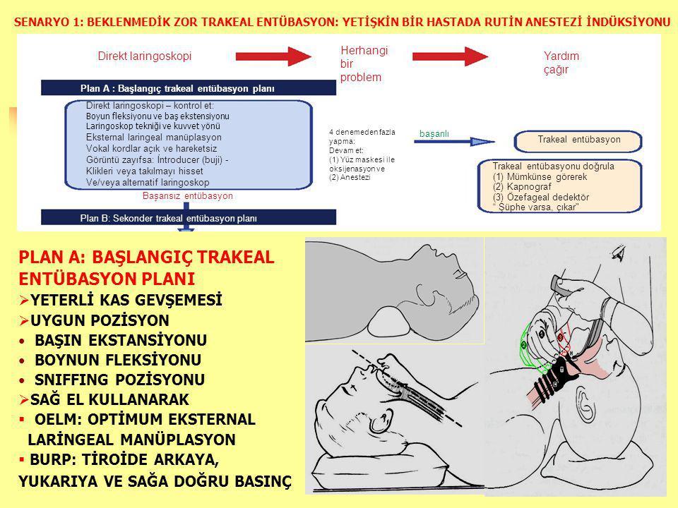 Direkt laringoskopi Plan A : Başlangıç trakeal entübasyon planı Direkt laringoskopi – kontrol et: Boyun fleksiyonu ve baş ekstensiyonu Laringoskop tekniği ve kuvvet yönü Eksternal laringeal manüplasyon Vokal kordlar açık ve hareketsiz Görüntü zayıfsa: İntroducer (buji) - Klikleri veya takılmayı hisset Ve/veya alternatif laringoskop Başarısız entübasyon Plan B: Sekonder trakeal entübasyon planı Herhangi bir problem Yardım çağır 4 denemeden fazla yapma: Devam et: (1) Yüz maskesi ile oksijenasyon ve (2) Anestezi başarılı Trakeal entübasyon Trakeal entübasyonu doğrula (1) Mümkünse görerek (2) Kapnograf (3) Özefageal dedektör Şüphe varsa, çıkar SENARYO 1: BEKLENMEDİK ZOR TRAKEAL ENTÜBASYON: YETİŞKİN BİR HASTADA RUTİN ANESTEZİ İNDÜKSİYONU PLAN A: BAŞLANGIÇ TRAKEAL ENTÜBASYON PLANI  YETERLİ KAS GEVŞEMESİ  UYGUN POZİSYON BAŞIN EKSTANSİYONU BOYNUN FLEKSİYONU SNIFFING POZİSYONU  SAĞ EL KULLANARAK  OELM: OPTİMUM EKSTERNAL LARİNGEAL MANÜPLASYON  BURP: TİROİDE ARKAYA, YUKARIYA VE SAĞA DOĞRU BASINÇ