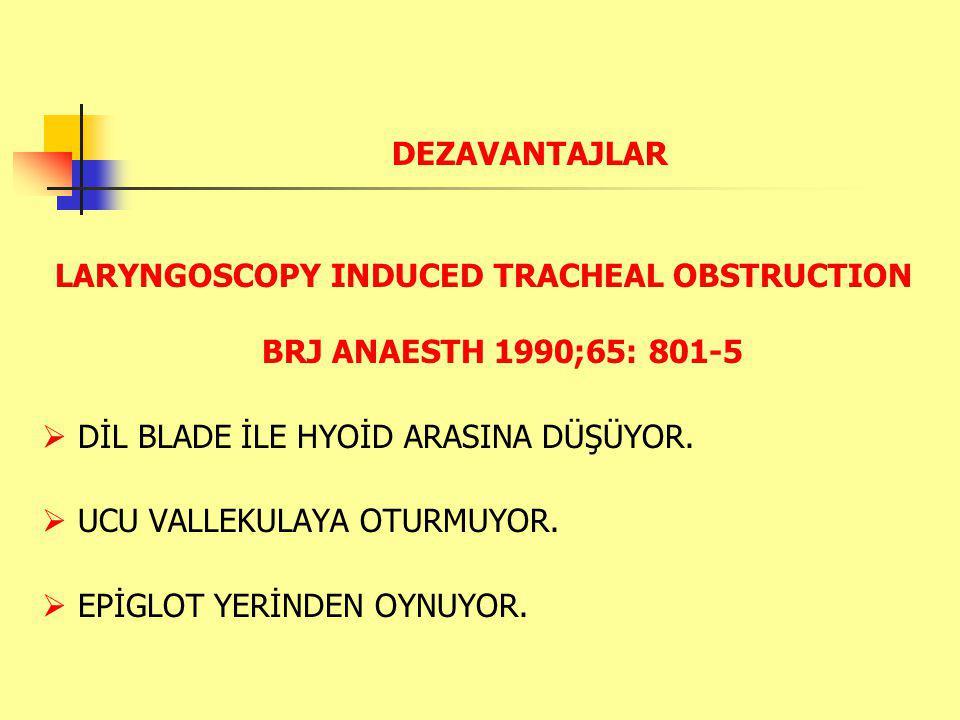 DEZAVANTAJLAR LARYNGOSCOPY INDUCED TRACHEAL OBSTRUCTION BRJ ANAESTH 1990;65: 801-5  DİL BLADE İLE HYOİD ARASINA DÜŞÜYOR.