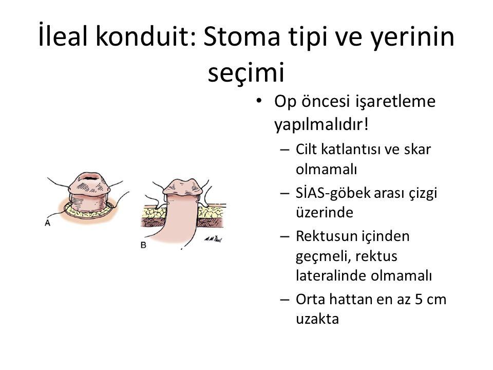 İleal konduit: Stoma tipi ve yerinin seçimi Op öncesi işaretleme yapılmalıdır! – Cilt katlantısı ve skar olmamalı – SİAS-göbek arası çizgi üzerinde –