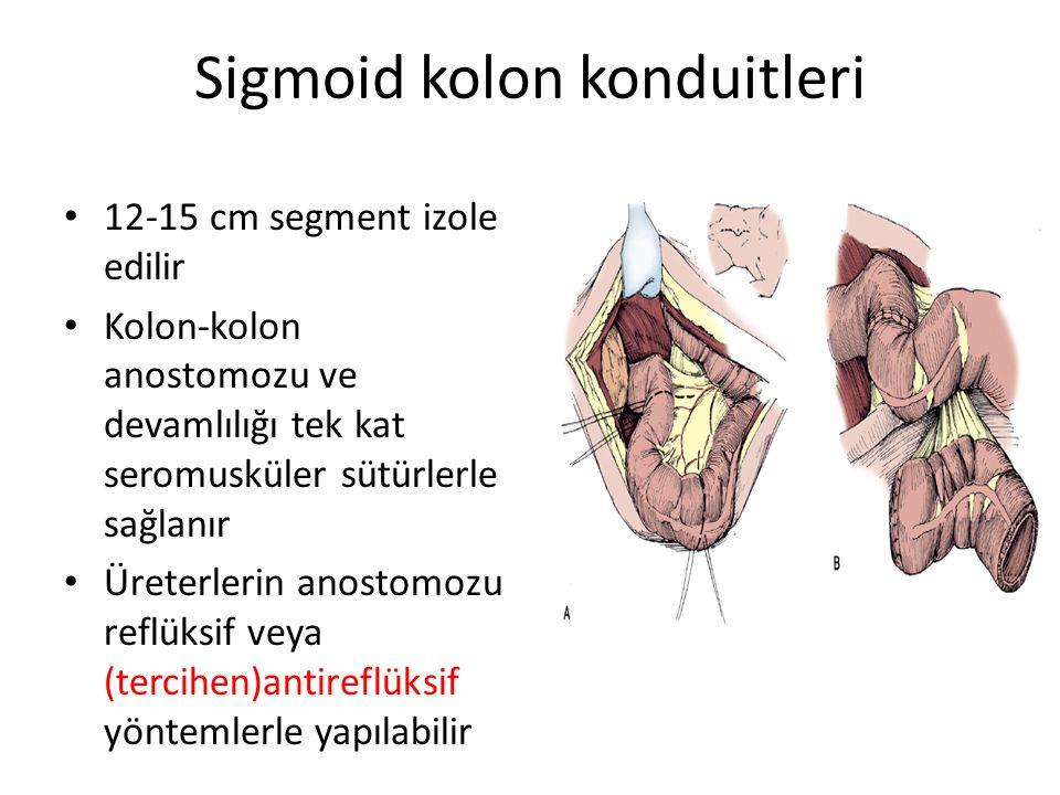 Sigmoid kolon konduitleri 12-15 cm segment izole edilir Kolon-kolon anostomozu ve devamlılığı tek kat seromusküler sütürlerle sağlanır Üreterlerin ano
