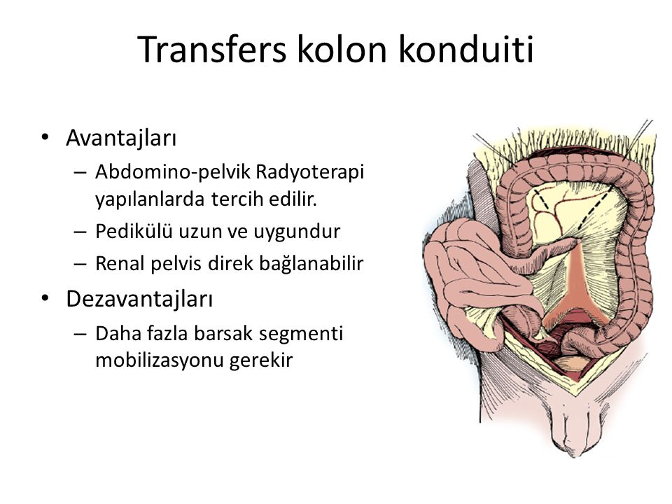 Transfers kolon konduiti Avantajları – Abdomino-pelvik Radyoterapi yapılanlarda tercih edilir. – Pedikülü uzun ve uygundur – Renal pelvis direk bağlan