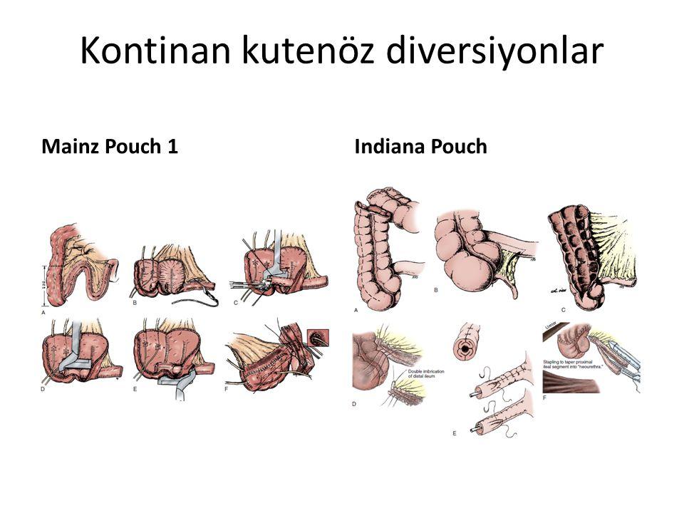 Kontinan kutenöz diversiyonlar Mainz Pouch 1Indiana Pouch