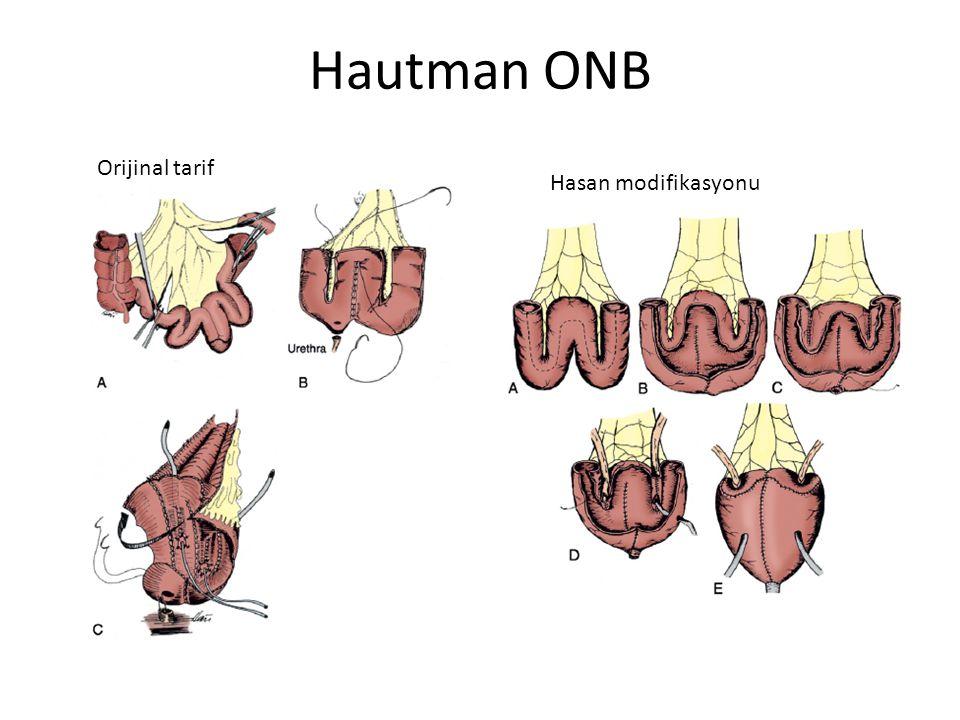 Hautman ONB Orijinal tarif Hasan modifikasyonu