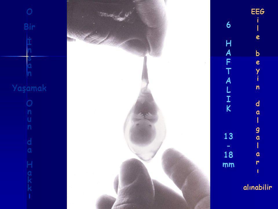 6 H A F T A L I K 13 - 18 mm EEG i l e b e y i n d a l g a l a r ı alınabilir O Bir İ n s a n Yaşamak O n u n d a H a k ı