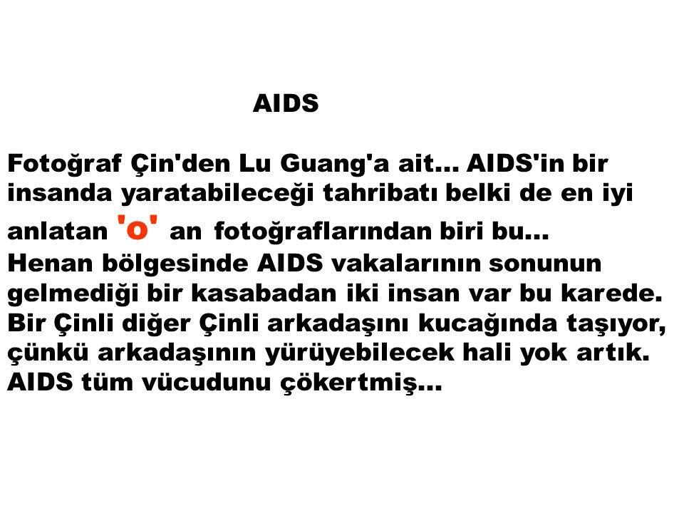 AIDS Fotoğraf Çin'den Lu Guang'a ait... AIDS'in bir insanda yaratabileceği tahribatı belki de en iyi anlatan 'o' an fotoğraflarından biri bu... Henan