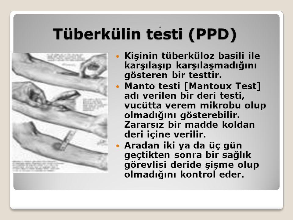 Tüberkülin testi (PPD) Tüberkülin testi (PPD). Kişinin tüberküloz basili ile karşılaşıp karşılaşmadığını gösteren bir testtir. Manto testi [Mantoux Te