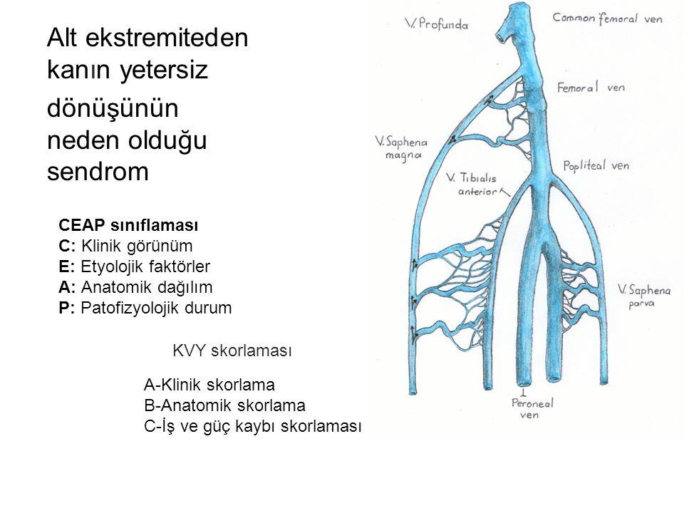 Alt ekstremiteden kanın yetersiz dönüşünün neden olduğu sendrom CEAP sınıflaması C: Klinik görünüm E: Etyolojik faktörler A: Anatomik dağılım P: Patofizyolojik durum A-Klinik skorlama B-Anatomik skorlama C-İş ve güç kaybı skorlaması KVY skorlaması