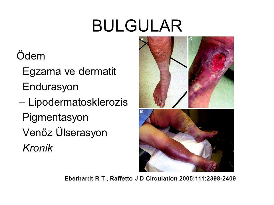 BULGULAR Ödem Egzama ve dermatit Endurasyon – Lipodermatosklerozis Pigmentasyon Venöz Ülserasyon Kronik Eberhardt R T, Raffetto J D Circulation 2005;111:2398-2409