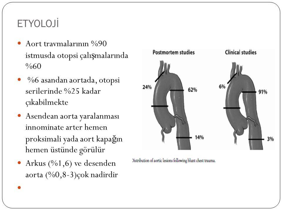 ETYOLOJİ Aort travmalarının %90 istmusda otopsi çalı ş malarında %60 %6 asandan aortada, otopsi serilerinde %25 kadar çıkabilmekte Asendean aorta yara