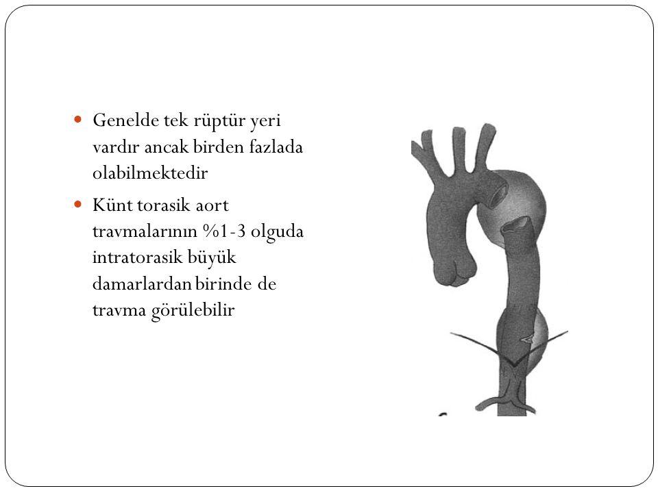 Genelde tek rüptür yeri vardır ancak birden fazlada olabilmektedir Künt torasik aort travmalarının %1-3 olguda intratorasik büyük damarlardan birinde