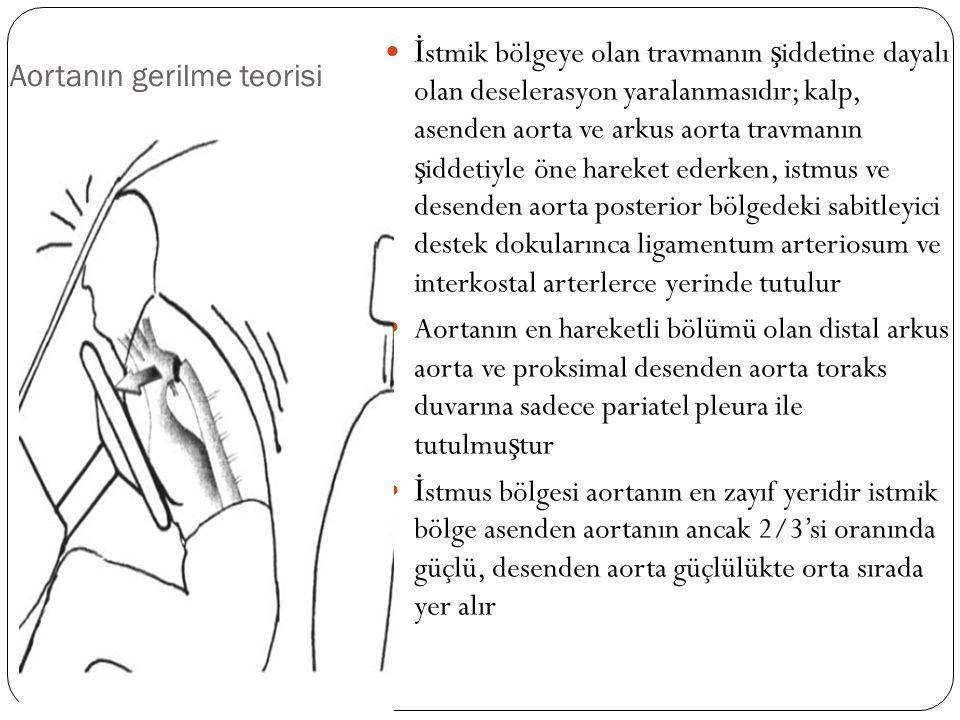 Aortanın gerilme teorisi İ stmik bölgeye olan travmanın ş iddetine dayalı olan deselerasyon yaralanmasıdır; kalp, asenden aorta ve arkus aorta travman