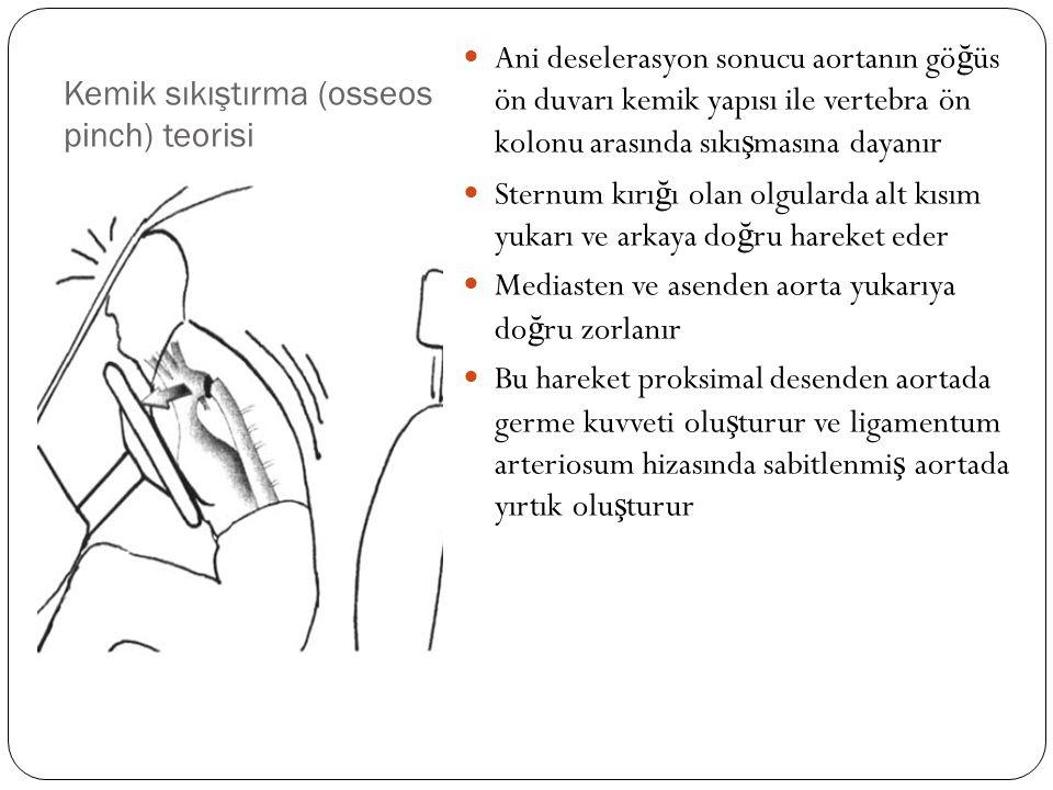 Kemik sıkıştırma (osseos pinch) teorisi Ani deselerasyon sonucu aortanın gö ğ üs ön duvarı kemik yapısı ile vertebra ön kolonu arasında sıkı ş masına