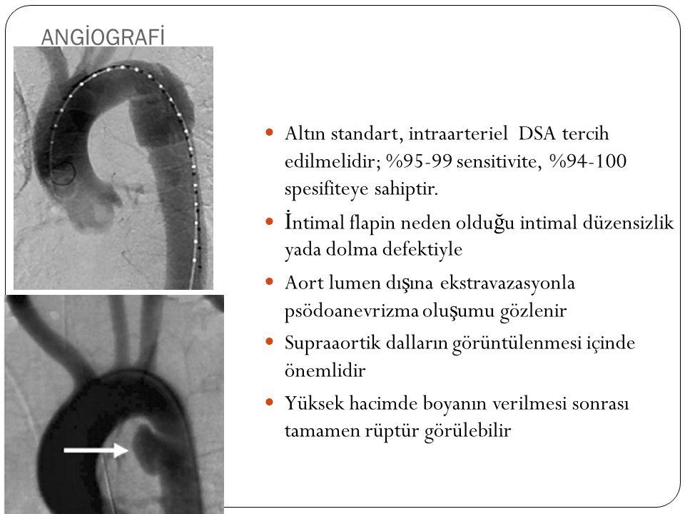 ANGİOGRAFİ Altın standart, intraarteriel DSA tercih edilmelidir; %95-99 sensitivite, %94-100 spesifiteye sahiptir. İ ntimal flapin neden oldu ğ u inti