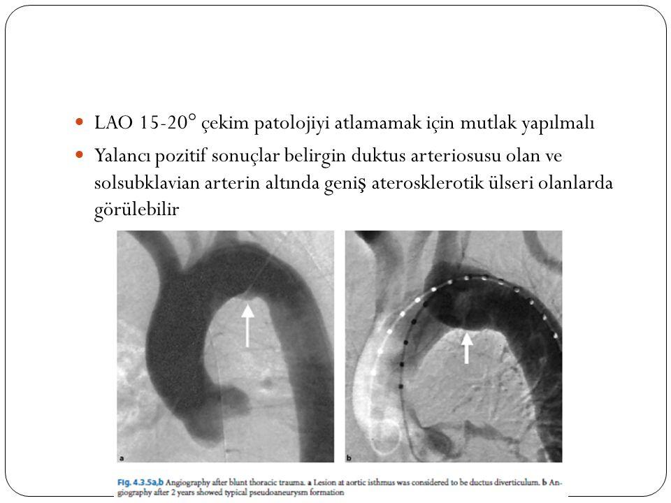 LAO 15-20° çekim patolojiyi atlamamak için mutlak yapılmalı Yalancı pozitif sonuçlar belirgin duktus arteriosusu olan ve solsubklavian arterin altında