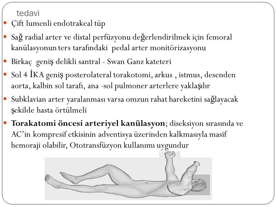 tedavi Çift lumenli endotrakeal tüp Sa ğ radial arter ve distal perfüzyonu de ğ erlendirilmek için femoral kanülasyonun ters tarafındaki pedal arter m