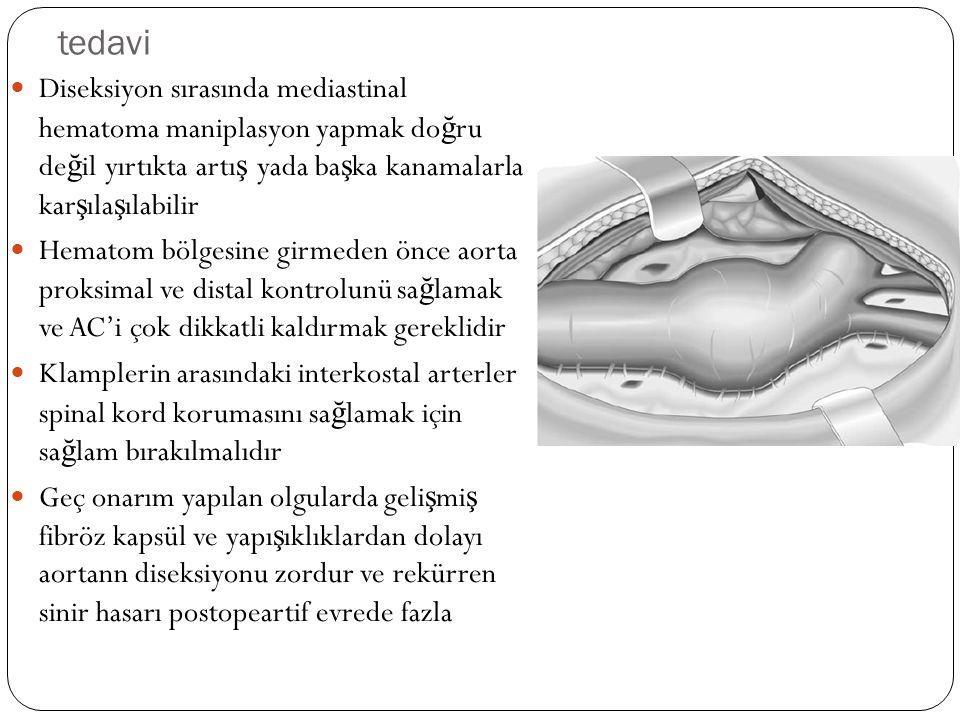 tedavi Diseksiyon sırasında mediastinal hematoma maniplasyon yapmak do ğ ru de ğ il yırtıkta artı ş yada ba ş ka kanamalarla kar ş ıla ş ılabilir Hema