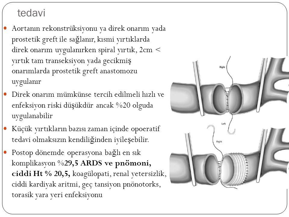 tedavi Aortanın rekonstrüksiyonu ya direk onarım yada prostetik greft ile sa ğ lanır, kısmi yırtıklarda direk onarım uygulanırken spiral yırtık, 2cm <