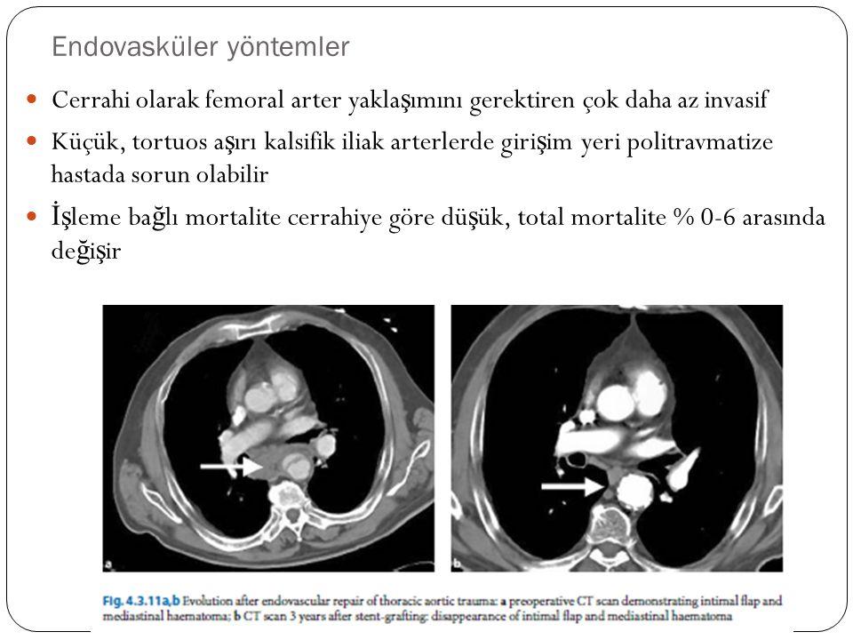 Endovasküler yöntemler Cerrahi olarak femoral arter yakla ş ımını gerektiren çok daha az invasif Küçük, tortuos a ş ırı kalsifik iliak arterlerde giri