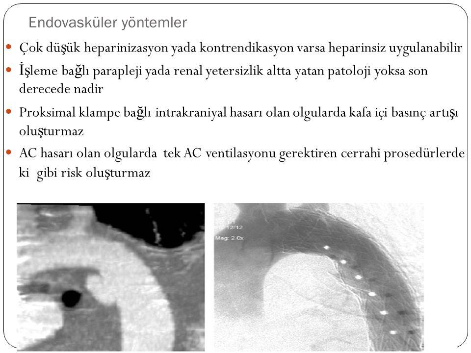 Endovasküler yöntemler Çok dü ş ük heparinizasyon yada kontrendikasyon varsa heparinsiz uygulanabilir İş leme ba ğ lı parapleji yada renal yetersizlik