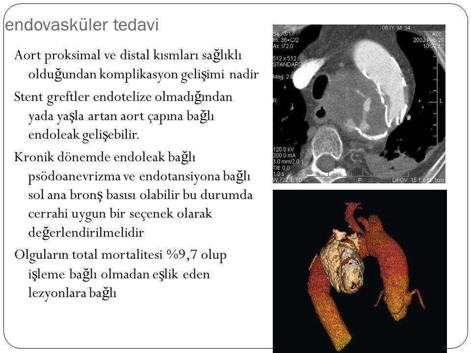 endovasküler tedavi Aort proksimal ve distal kısmları sa ğ lıklı oldu ğ undan komplikasyon geli ş imi nadir Stent greftler endotelize olmadı ğ ından y