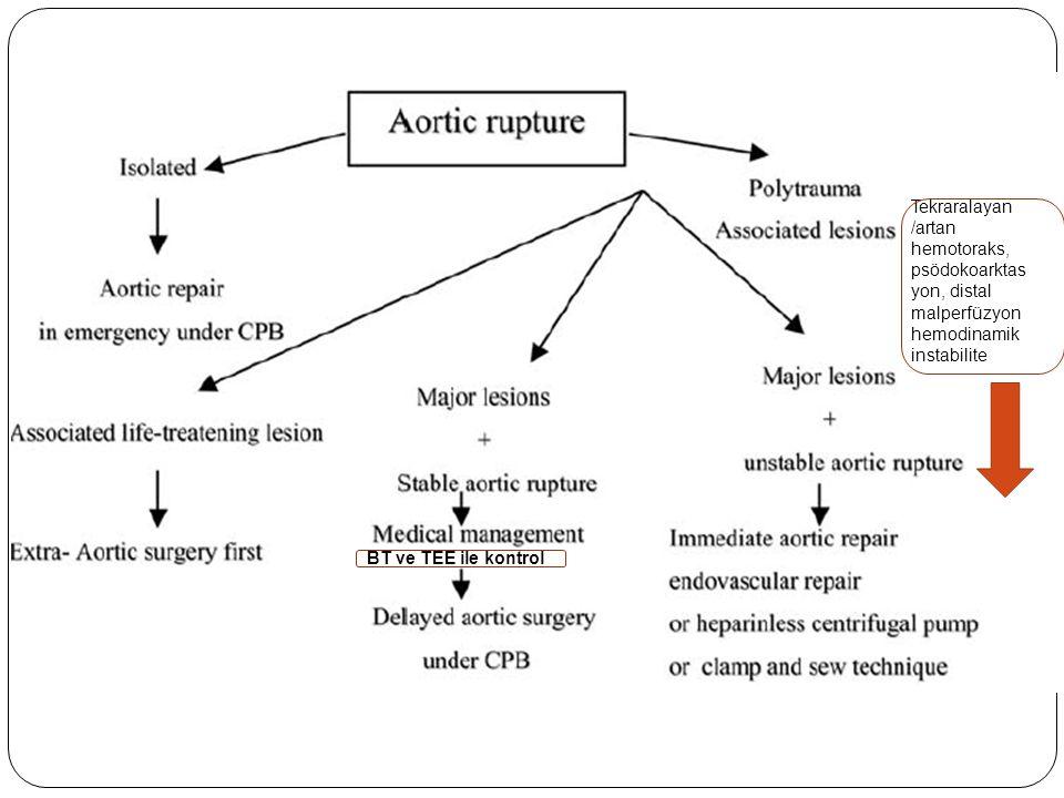 Tekraralayan /artan hemotoraks, psödokoarktas yon, distal malperfüzyon hemodinamik instabilite BT ve TEE ile kontrol