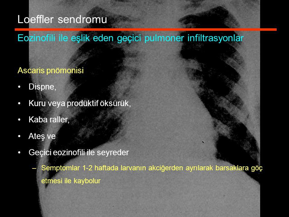 Loeffler sendromu Eozinofili ile eşlik eden geçici pulmoner infiltrasyonlar Ascaris pnömonisi Dispne, Kuru veya prodüktif öksürük, Kaba raller, Ateş v
