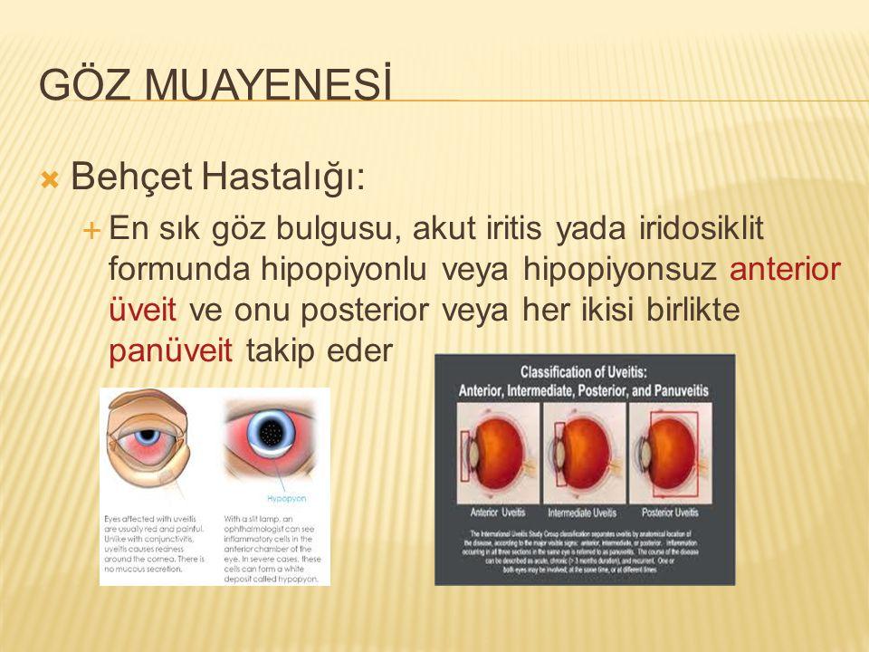 GÖZ MUAYENESİ  Behçet Hastalığı:  En sık göz bulgusu, akut iritis yada iridosiklit formunda hipopiyonlu veya hipopiyonsuz anterior üveit ve onu post