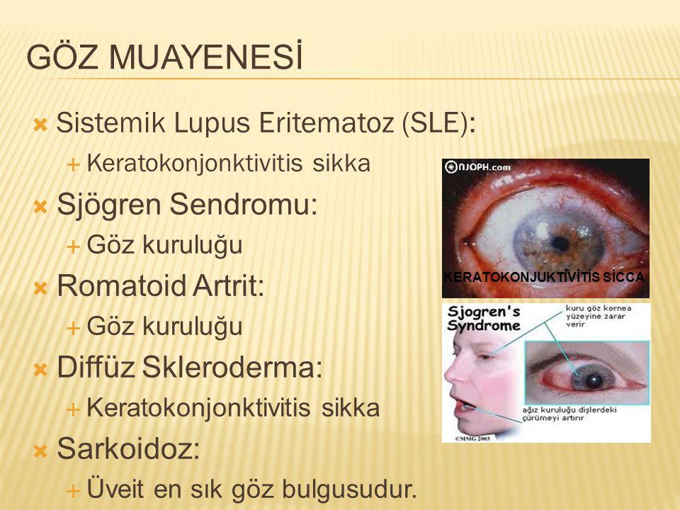 GÖZ MUAYENESİ  Sistemik Lupus Eritematoz (SLE):  Keratokonjonktivitis sikka  Sjögren Sendromu:  Göz kuruluğu  Romatoid Artrit:  Göz kuruluğu  D