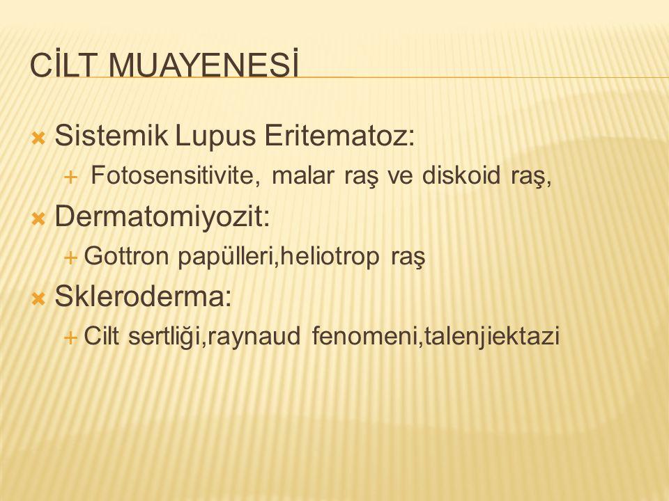 CİLT MUAYENESİ  Sistemik Lupus Eritematoz:  Fotosensitivite, malar raş ve diskoid raş,  Dermatomiyozit:  Gottron papülleri,heliotrop raş  Sklerod
