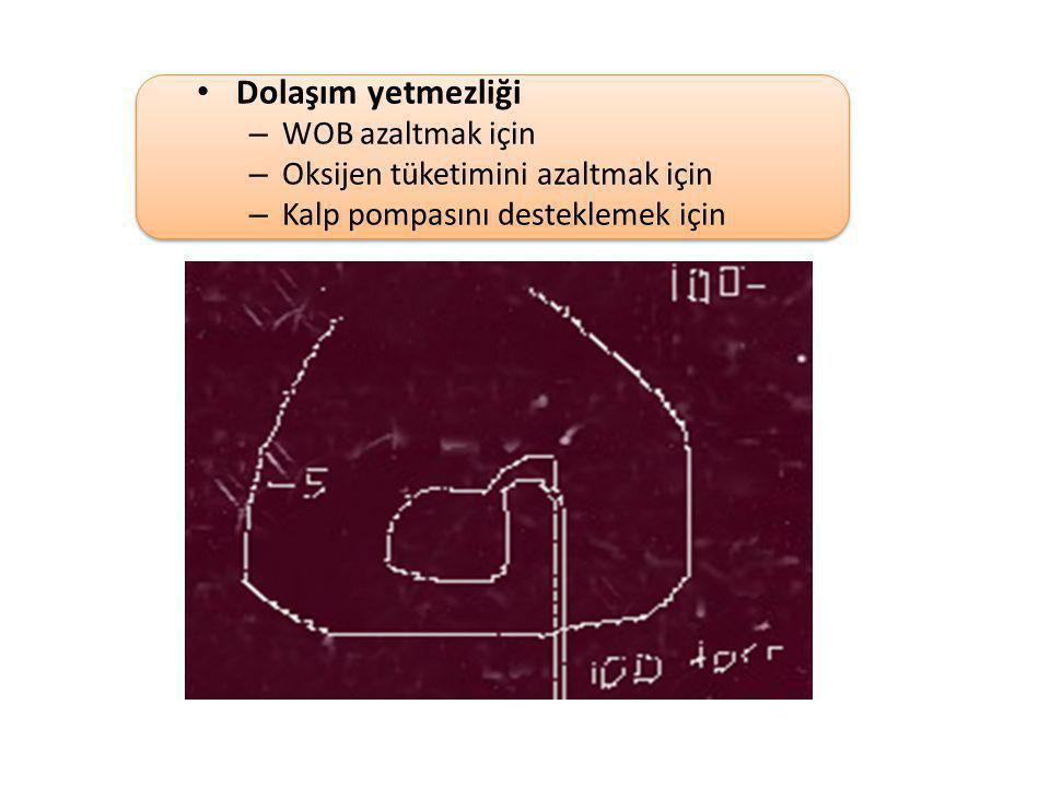 Dolaşım yetmezliği – WOB azaltmak için – Oksijen tüketimini azaltmak için – Kalp pompasını desteklemek için