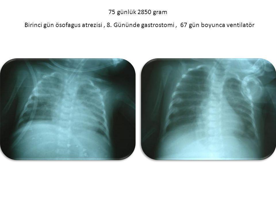 75 günlük 2850 gram Birinci gün ösofagus atrezisi, 8. Gününde gastrostomi, 67 gün boyunca ventilatör