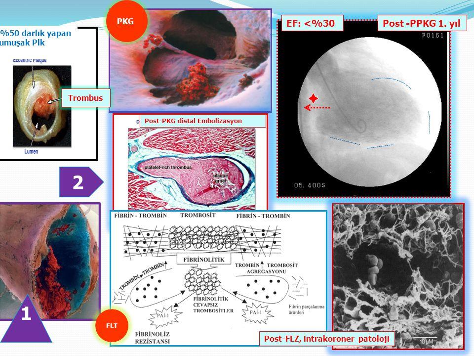 Trombus <%50 darlık yapan Yumuşak Plk Post-PKG distal Embolizasyon PKG FLT EF: <%30 Post -PPKG 1.