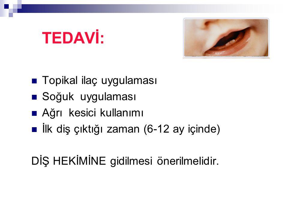 TEDAVİ: Topikal ilaç uygulaması Soğuk uygulaması Ağrı kesici kullanımı İlk diş çıktığı zaman (6-12 ay içinde) DİŞ HEKİMİNE gidilmesi önerilmelidir.