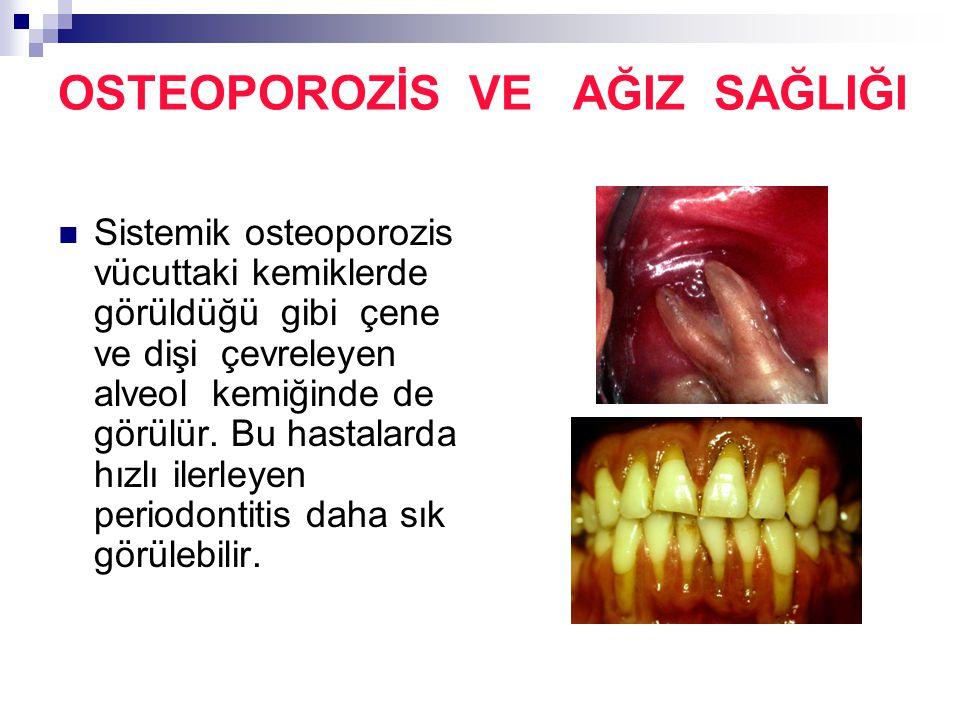 OSTEOPOROZİS VE AĞIZ SAĞLIĞI Sistemik osteoporozis vücuttaki kemiklerde görüldüğü gibi çene ve dişi çevreleyen alveol kemiğinde de görülür. Bu hastala