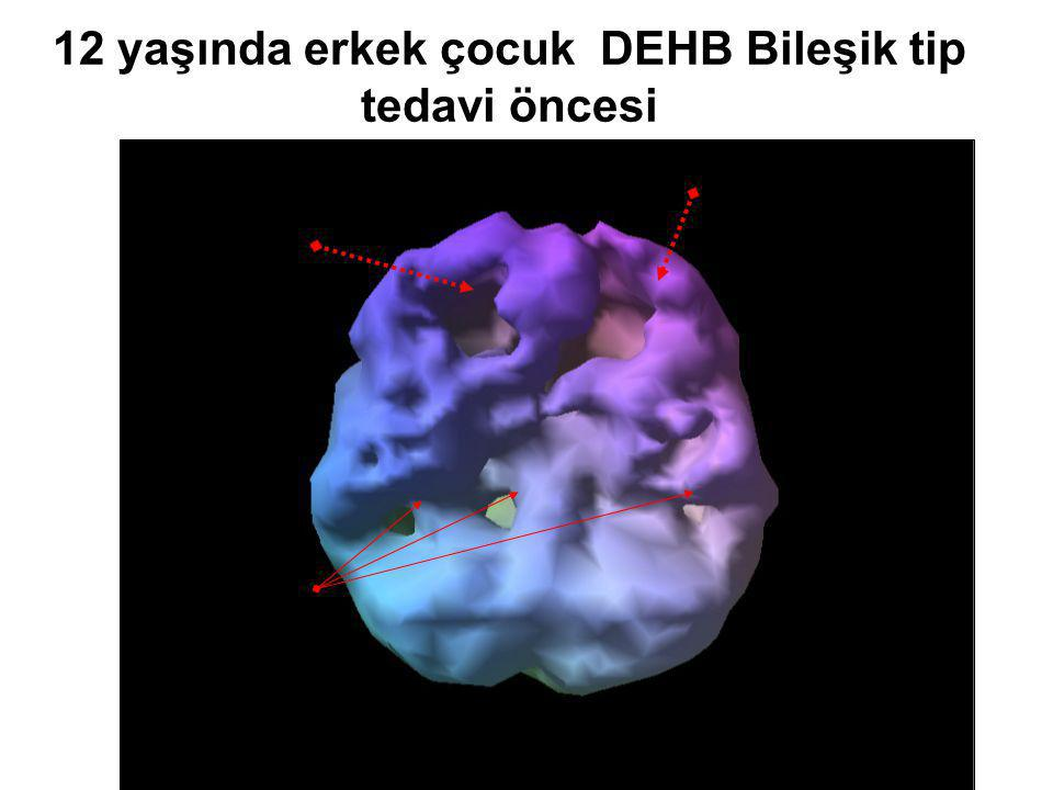 Prof.Dr.Ayşe Avcı Gaziantep 21.03.2008 12 yaşında erkek çocuk DEHB Bileşik tip tedavi öncesi