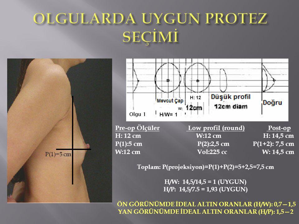 Olgu 1 H: 12 W: Pre-op Ölçüler Low profil (round) Post-op H: 12 cm W:12 cm H: 14,5 cm P(1):5 cm P(2):2,5 cm P(1+2): 7,5 cm W:12 cm Vol:225 cc W: 14,5 cm Toplam: P(projeksiyon)=P(1)+P(2)=5+2,5=7,5 cm H/W: 14,5/14,5 = 1 (UYGUN) H/P: 14,5/7.5 = 1,93 (UYGUN) ÖN GÖRÜNÜMDE İDEAL ALTIN ORANLAR (H/W): 0,7—1,5 YAN GÖRÜNÜMDE İDEAL ALTIN ORANLAR (H/P): 1,5—2 P(1)=5 cm H/W= 1