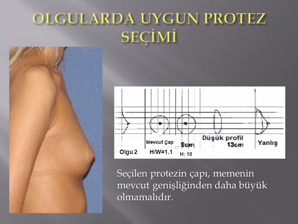 Olgu 2 H: 10 H/W=1.1 Seçilen protezin çapı, memenin mevcut genişliğinden daha büyük olmamalıdır.