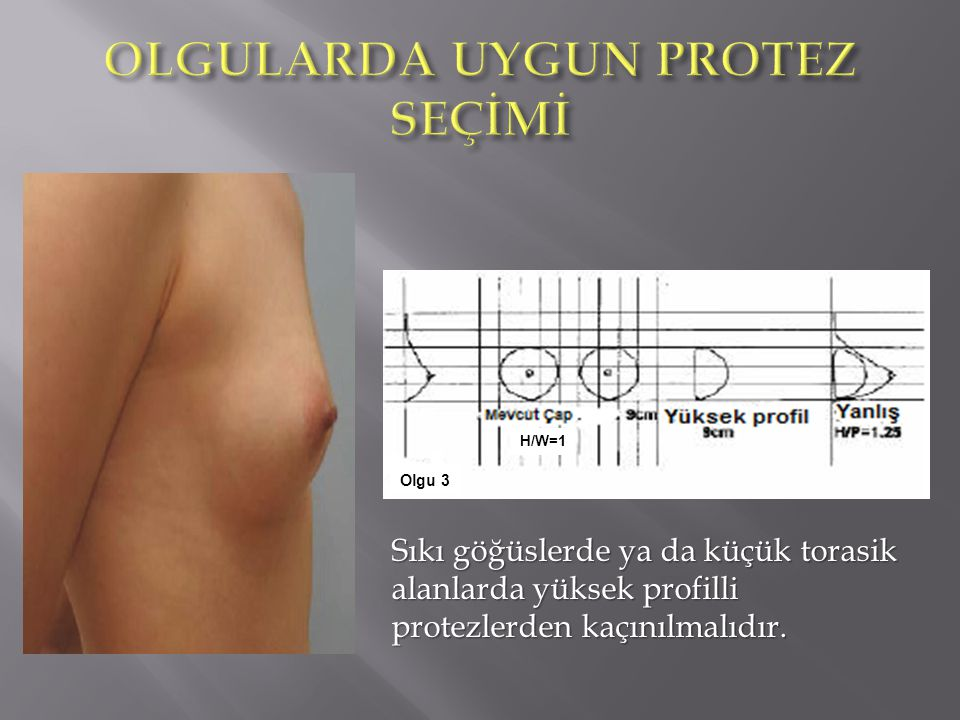 Olgu 3 H/W=1 Sıkı göğüslerde ya da küçük torasik alanlarda yüksek profilli protezlerden kaçınılmalıdır.