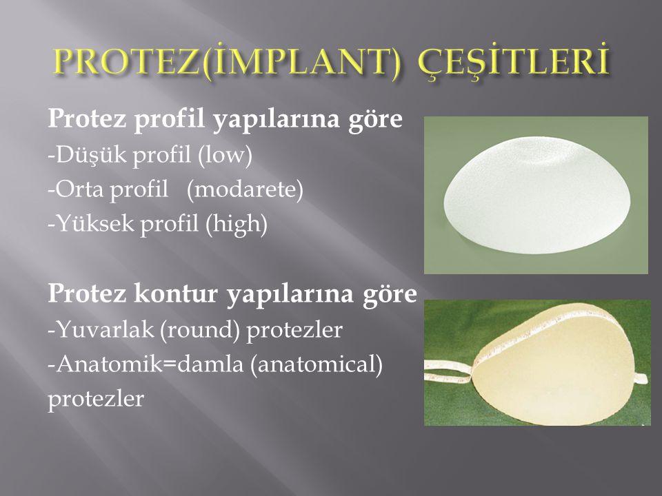 Protez profil yapılarına göre -Düşük profil (low) -Orta profil (modarete) -Yüksek profil (high) Protez kontur yapılarına göre -Yuvarlak (round) protezler -Anatomik=damla (anatomical) protezler