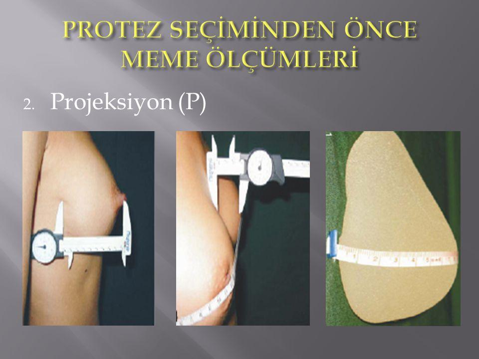 2. Projeksiyon (P)
