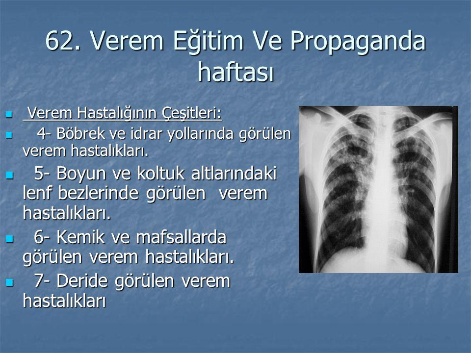62. Verem Eğitim Ve Propaganda haftası Verem Hastalığının Çeşitleri: Verem Hastalığının Çeşitleri: 4- Böbrek ve idrar yollarında görülen verem hastalı