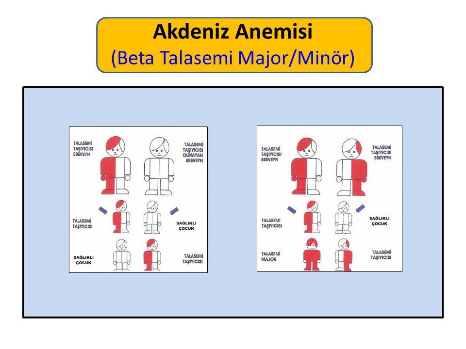 Akdeniz Anemisi (Beta Talasemi Major/Minör)