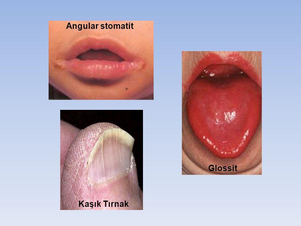Kaşık Tırnak Angular stomatit Glossit