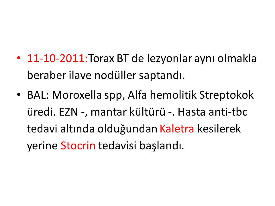 11-10-2011:Torax BT de lezyonlar aynı olmakla beraber ilave nodüller saptandı. BAL: Moroxella spp, Alfa hemolitik Streptokok üredi. EZN -, mantar kült