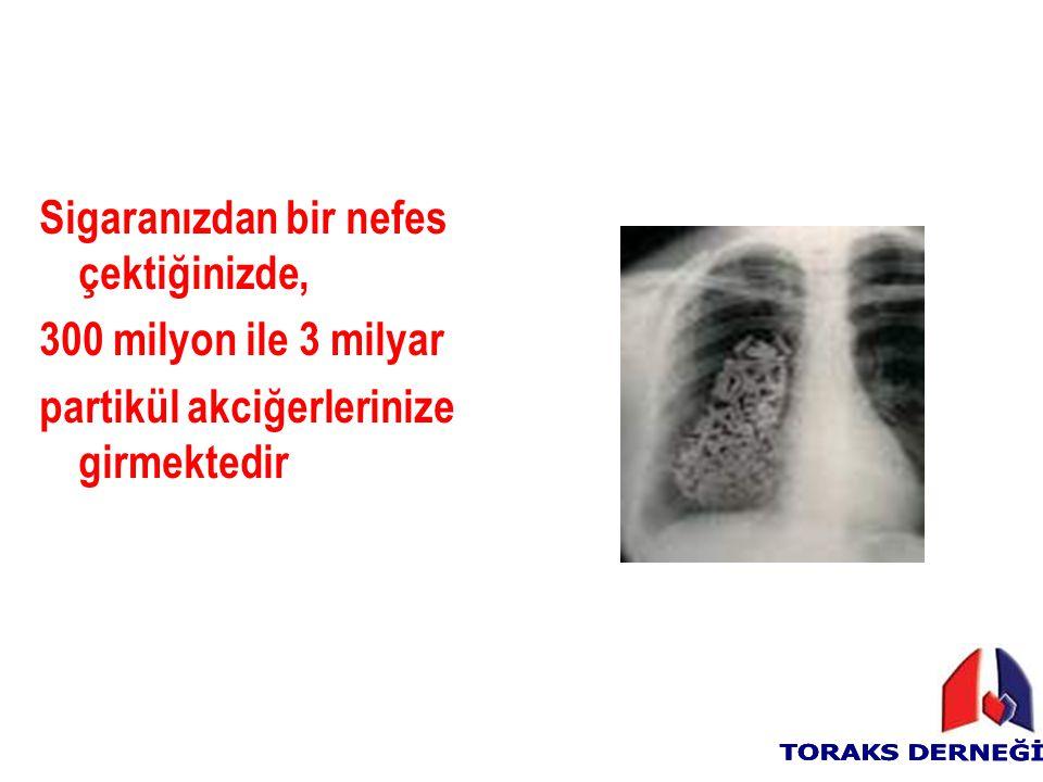 Sigaranızdan bir nefes çektiğinizde, 300 milyon ile 3 milyar partikül akciğerlerinize girmektedir