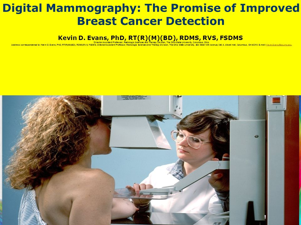 62 Digital Mammography: The Promise of Improved Breast Cancer Detection Kevin D. Evans, PhD, RT(R)(M)(BD), RDMS, RVS, FSDMS * Director/Assistant Profe