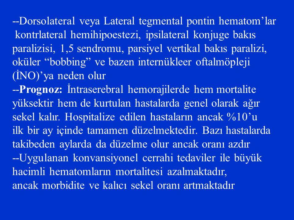 --Dorsolateral veya Lateral tegmental pontin hematom'lar kontrlateral hemihipoestezi, ipsilateral konjuge bakıs paralizisi, 1,5 sendromu, parsiyel ver