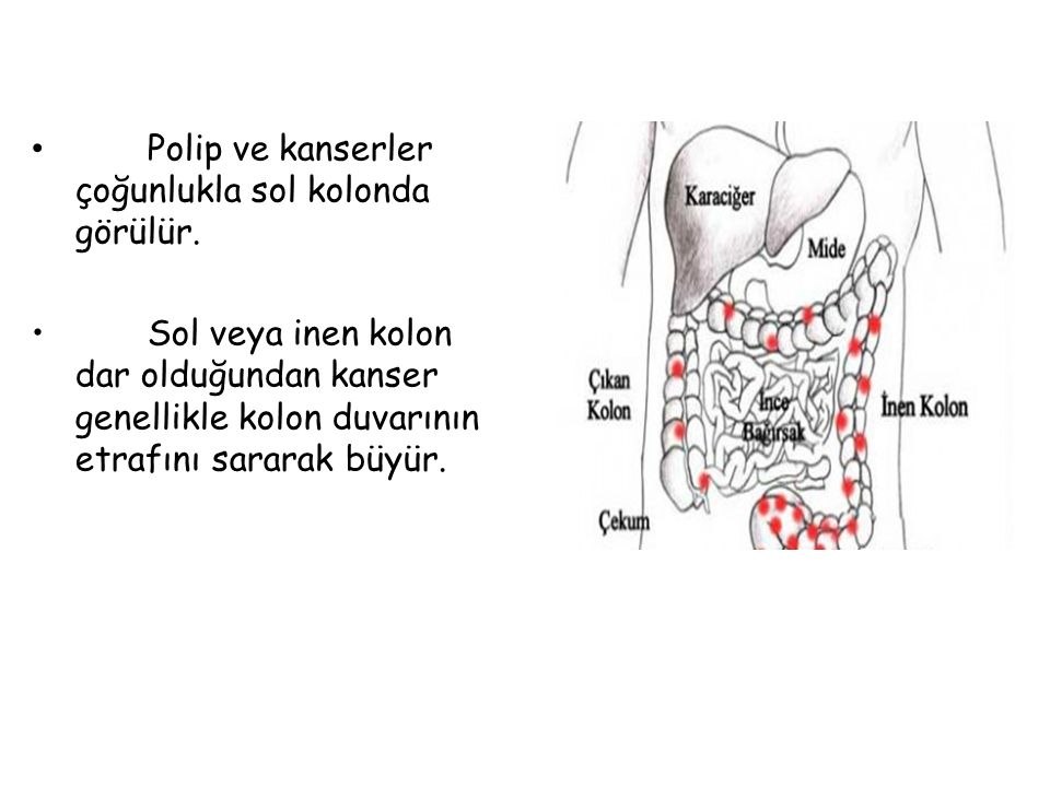 Polip ve kanserler çoğunlukla sol kolonda görülür. Sol veya inen kolon dar olduğundan kanser genellikle kolon duvarının etrafını sararak büyür.